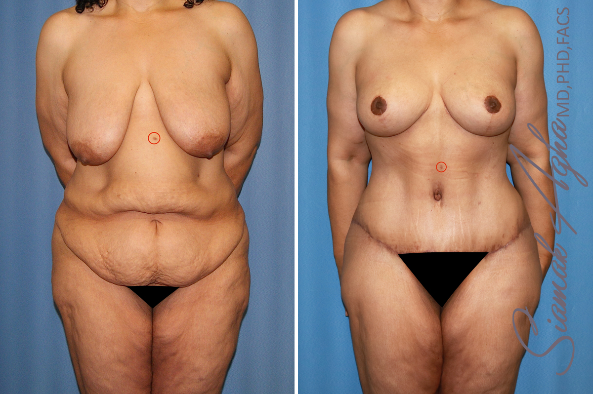 from Rayan transsexual body sculpting plastic surgery