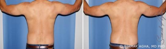 orange-county-arm-lift-patient-11-back