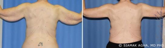 orange-county-arm-lift-patient-6-back