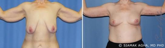 orange-county-arm-lift-patient-6-front
