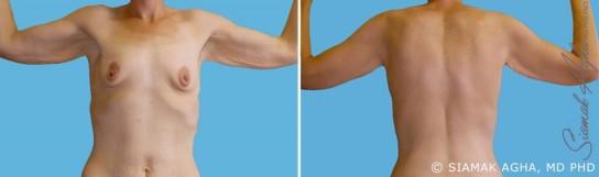 orange-county-arm-lift-patient-7-back