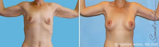 orange-county-arm-lift-patient-7-front