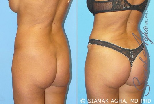 orange-county-brazilian-butt-lift-patient-1-back-left