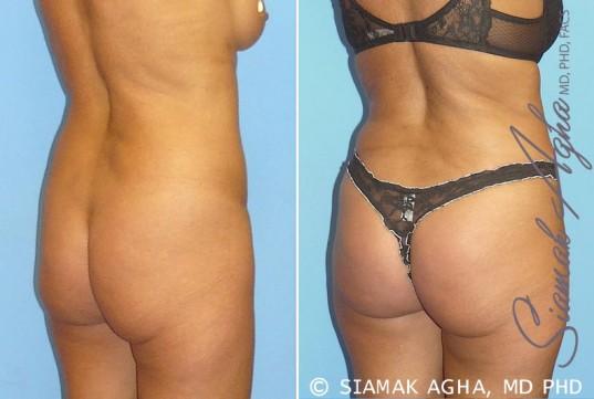 orange-county-brazilian-butt-lift-patient-1-back-right