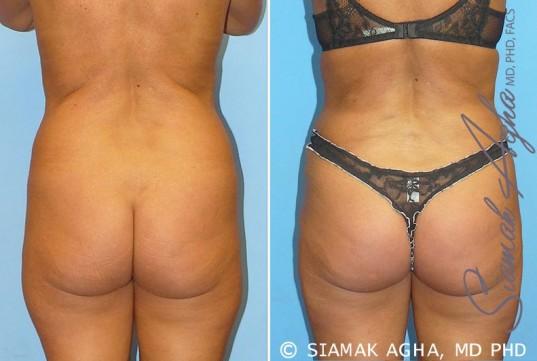 orange-county-brazilian-butt-lift-patient-1-back