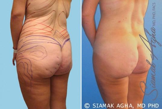 orange-county-brazilian-butt-lift-patient-10-back-left