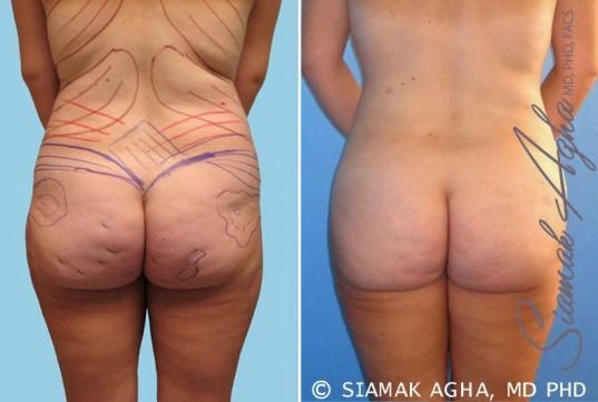 orange-county-brazilian-butt-lift-patient-10-back