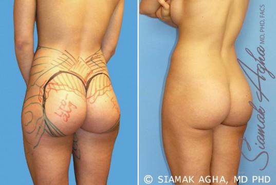 orange-county-brazilian-butt-lift-patient-14-back-left
