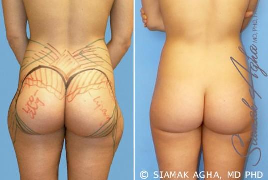orange-county-brazilian-butt-lift-patient-14-back