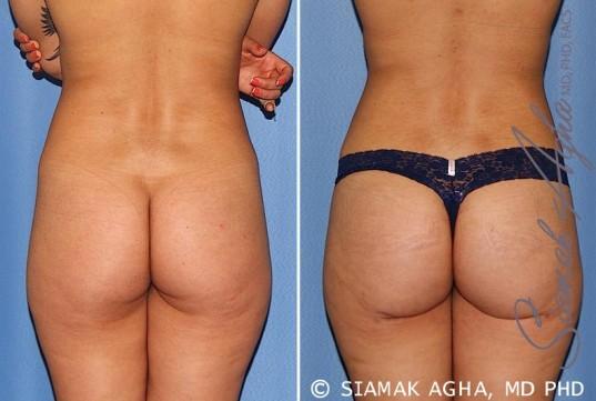 orange-county-brazilian-butt-lift-patient-25-back-1