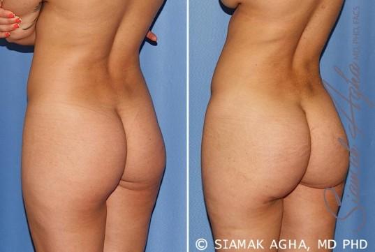 orange-county-brazilian-butt-lift-patient-25-back-left