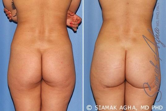 orange-county-brazilian-butt-lift-patient-25-back