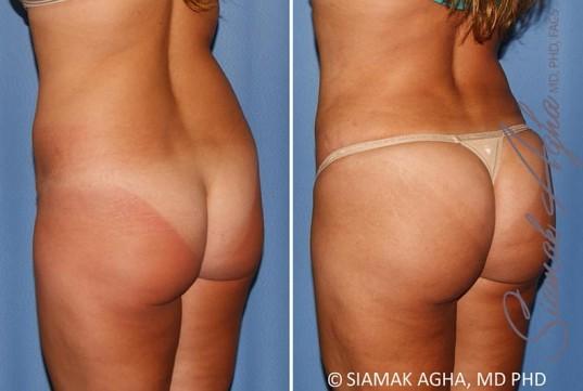 orange-county-brazilian-butt-lift-patient-30-back-left