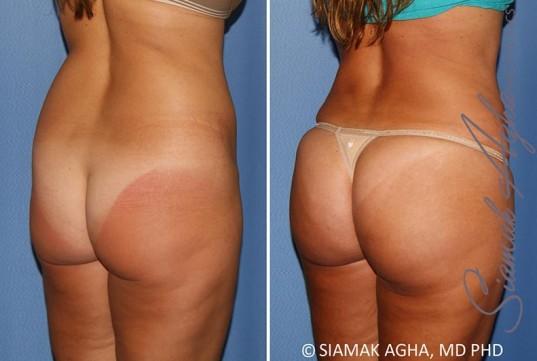 orange-county-brazilian-butt-lift-patient-30-back-right