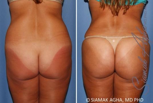 orange-county-brazilian-butt-lift-patient-30-back