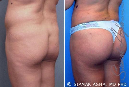 orange-county-brazilian-butt-lift-patient-6-back-left