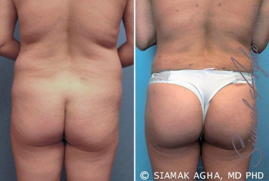 orange-county-brazilian-butt-lift-patient-6-back