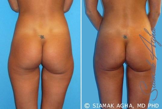 orange-county-brazilian-butt-lift-patient-7-back