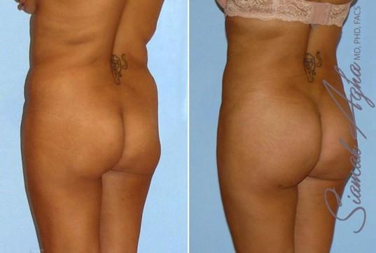 orange-county-brazilian-butt-lift-patient-9-back-left