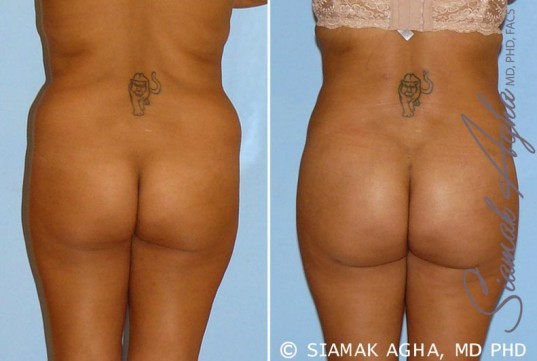 orange-county-brazilian-butt-lift-patient-9-back