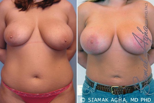 orange-county-breast-asymmetry-patient-1-front
