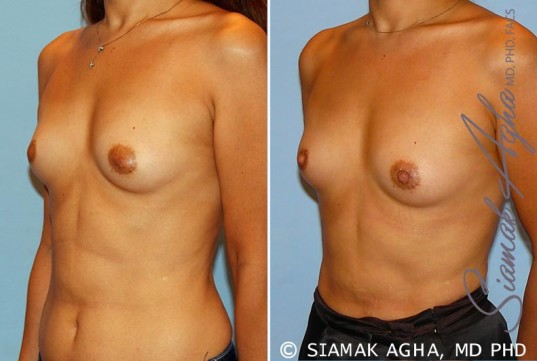 orange-county-breast-asymmetry-patient-3-front-left