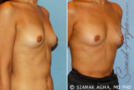orange-county-breast-asymmetry-patient-3-front-right