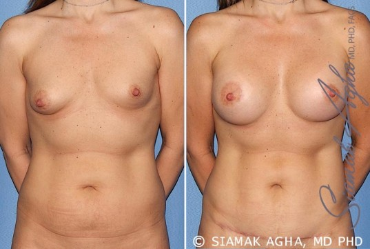 orange-county-breast-asymmetry-patient-5-front