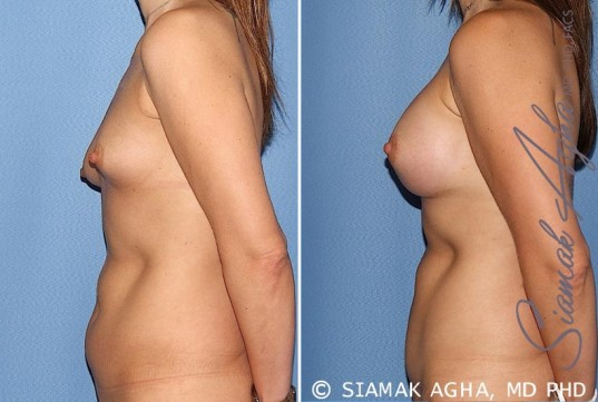orange-county-breast-asymmetry-patient-5-left