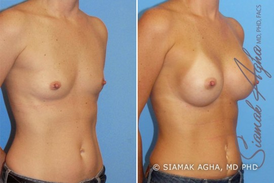 orange-county-breast-augmentation-patient-11-front-right