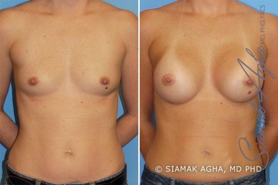 orange-county-breast-augmentation-patient-11-front