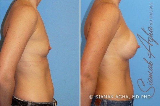 orange-county-breast-augmentation-patient-11-right