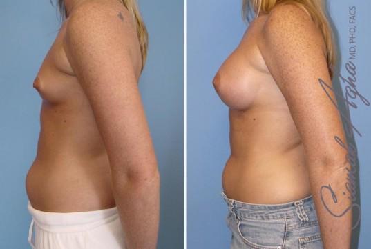 orange-county-breast-augmentation-patient-12-left
