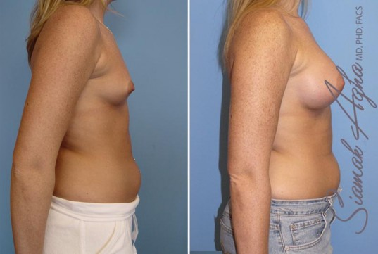 orange-county-breast-augmentation-patient-12-right