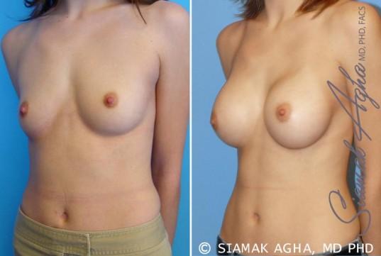 orange-county-breast-augmentation-patient-13-front-left