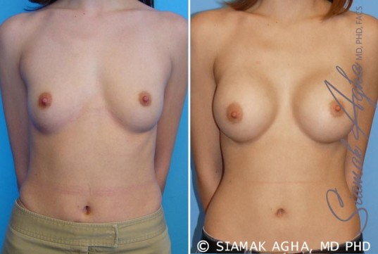 orange-county-breast-augmentation-patient-13-front