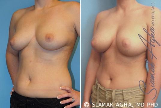 orange-county-breast-augmentation-patient-14-front-left