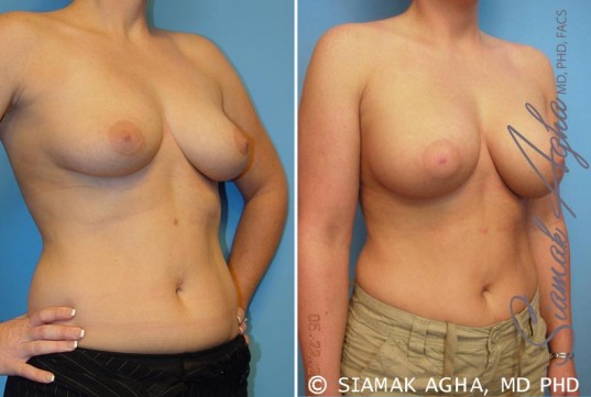 orange-county-breast-augmentation-patient-14-front-right