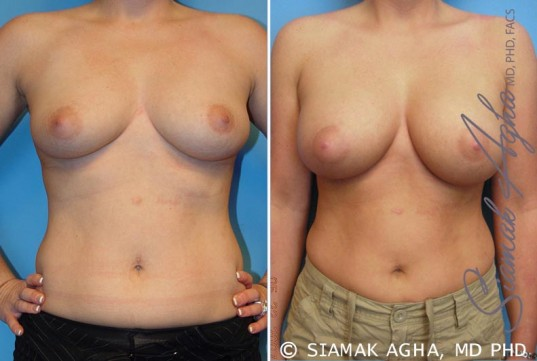orange-county-breast-augmentation-patient-14-front