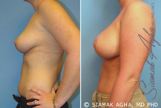 orange-county-breast-augmentation-patient-14-left