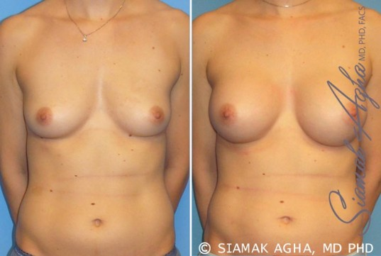 orange-county-breast-augmentation-patient-15-front