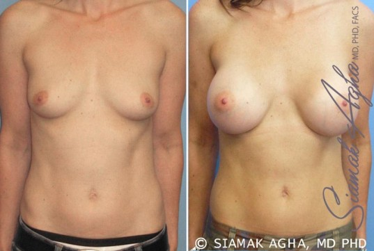 orange-county-breast-augmentation-patient-16-front