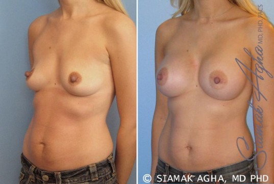 orange-county-breast-augmentation-patient-17-front-left