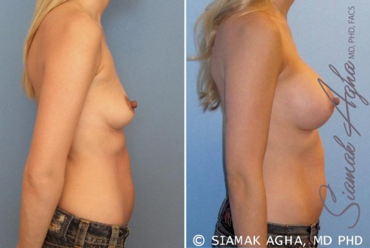 orange-county-breast-augmentation-patient-17-right