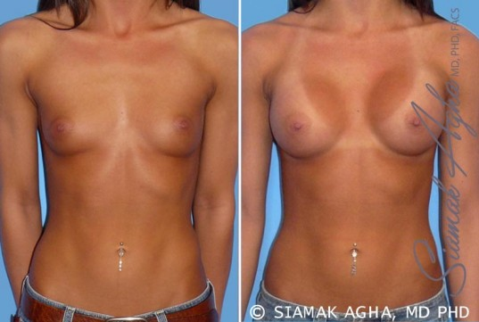 orange-county-breast-augmentation-patient-19-front