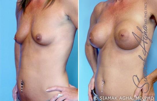 orange-county-breast-augmentation-patient-2-front-left