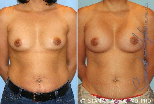 orange-county-breast-augmentation-patient-20-front