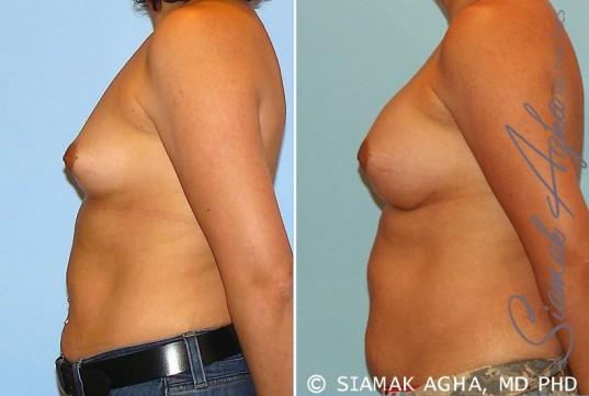 orange-county-breast-augmentation-patient-20-left