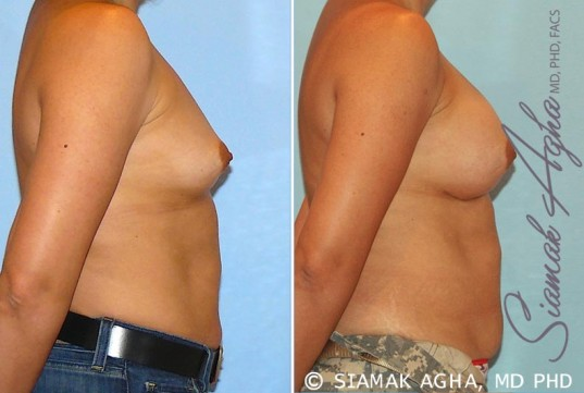 orange-county-breast-augmentation-patient-20-right