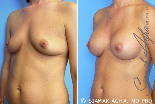 orange-county-breast-augmentation-patient-21-front-left